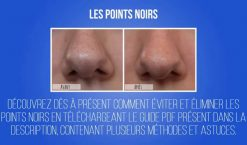 Comment se debarrasser des points noirs